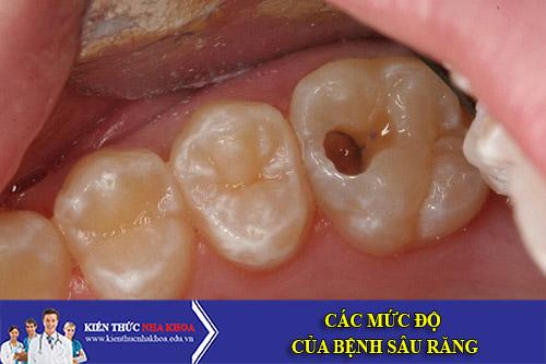 Các Mức Độ Của Bệnh Sâu Răng