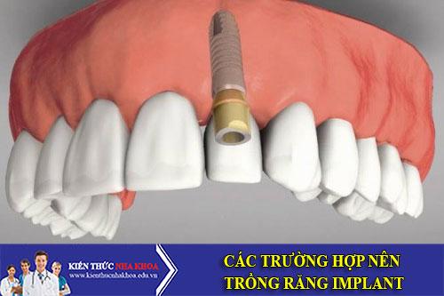 Các Trường Hợp Nên Trồng Răng Implant
