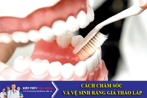 Cách Chăm Sóc Và Vệ Sinh Răng Giả Tháo Lắp