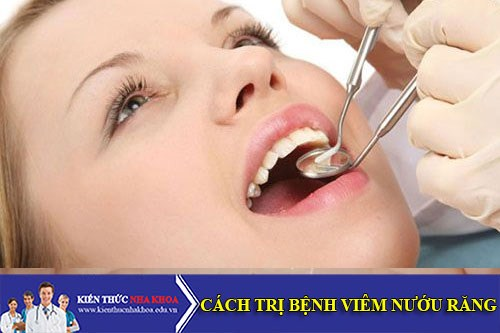 Cách Điều Trị Bệnh Viêm Nướu Răng