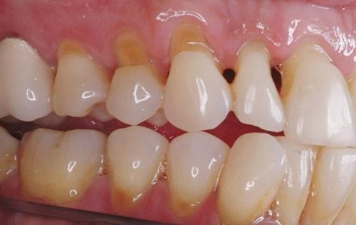Nguyên Nhân Và Cách Điều Trị Khuyết Cổ Răng Hiệu Quả Nhất Hiện Nay