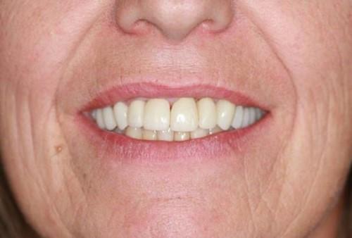 Chia sẻ cách giảm thiểu yếu tố nguy hiểm khi trồng răng implant