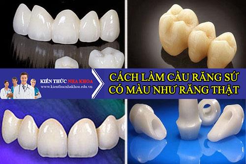 Cách Thức Làm Cầu Răng Sứ Có Màu Giống Với Răng Thật