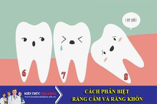 Cách Phân Biệt Răng Cấm Và Răng Khôn