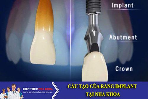 Cấu Tạo Của Răng Implant Tại Nha Khoa