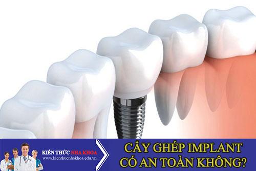 Cấy Ghép Răng Implant Có An Toàn Tuyệt Đối Không?