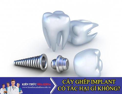 Cấy Ghép Răng Implant Có Gây Tác Hại gì Không?