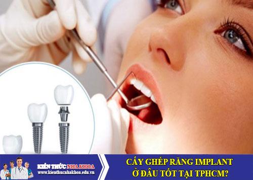 Cấy ghép răng Implant ở đâu tốt tại TPHCM?