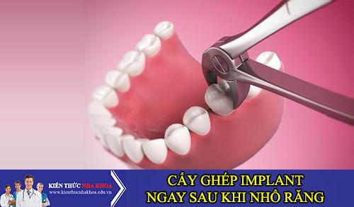 Cấy Ghép Implant Ngay Sau Khi Nhổ Răng Có Được Không?