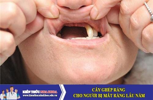 Cấy ghép răng cho người bị mất răng lâu năm