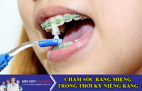 Chăm Sóc Răng Miệng Trong Thời Kỳ Niềng Răng Như Thế Nào?