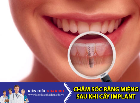 Chăm Sóc Răng Miệng Sau Khi Cấy Ghép Răng Implant Như Thế Nào?