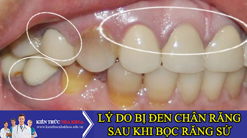 Tại Sao Bọc Răng Sứ Bị Đen Chân Răng Sau Vài Tháng?