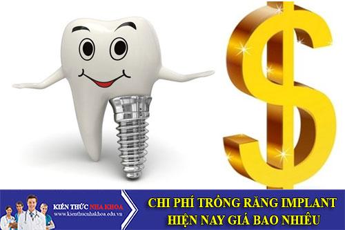 Chi Phí Trồng Răng Implant Hiện Nay Giá Bao Nhiêu