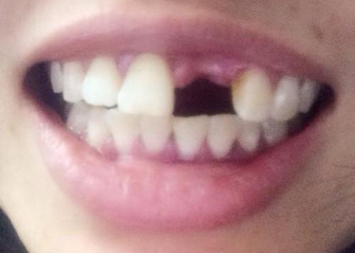 Chia sẻ địa chỉ trồng răng Implant giá rẻ