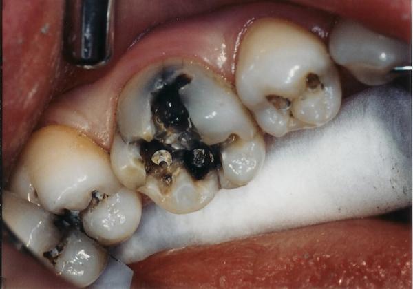 Sâu Răng Và Cơ Chế Điều Trị Sâu Răng