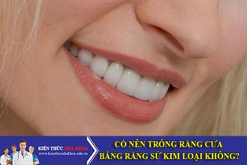 Có Nên Trồng Răng Cửa Bằng Răng Sứ Kim Loại Không?