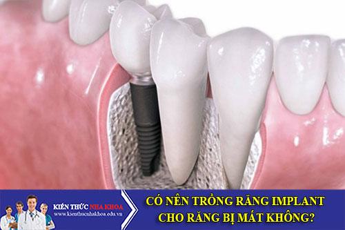 Có Nên Trồng Răng Implant Cho Răng Bị Mất Không?
