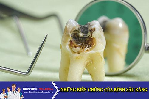 Dấu Hiệu Và Những Triệu Chứng Của Bệnh Sâu Răng