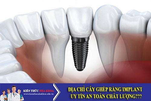 Địa Chỉ Cấy Ghép Răng Implant Uy Tín An Toàn Chất Lượng?