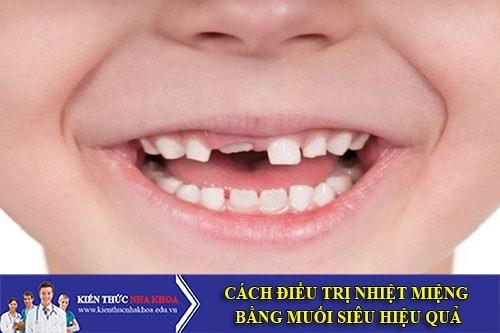 Những Điều Đặc Biệt Cần Lưu Ý Khi Trẻ Thay Răng