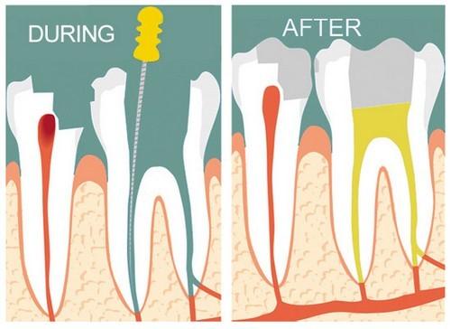 Khi Nào Nên Điều Trị Tủy Răng