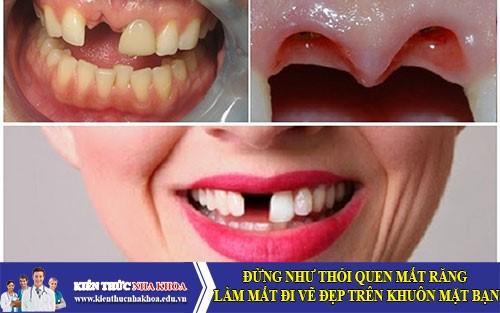 Đừng như thói quen mất răng làm mất đi vẽ đẹp trên khuôn mặt bạn