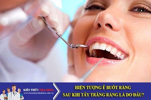 Hiện tượng ê buốt răng sau khi tẩy trắng răng là do đâu?
