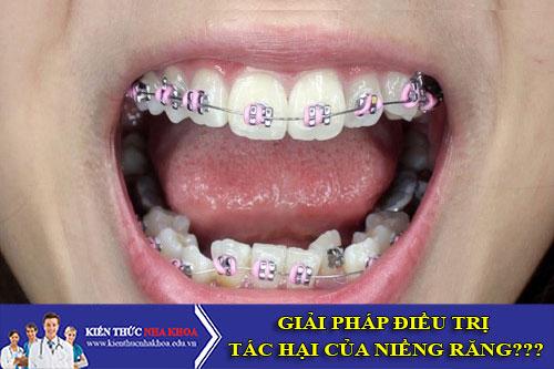 Giải pháp điều trị tác hại của niềng răng