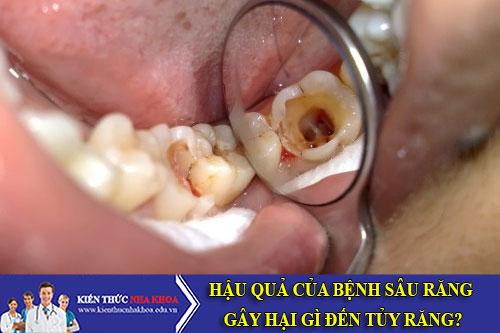 Hậu Quả Của Bệnh Sâu Răng Gây Hại Gì Đến Tủy Răng?