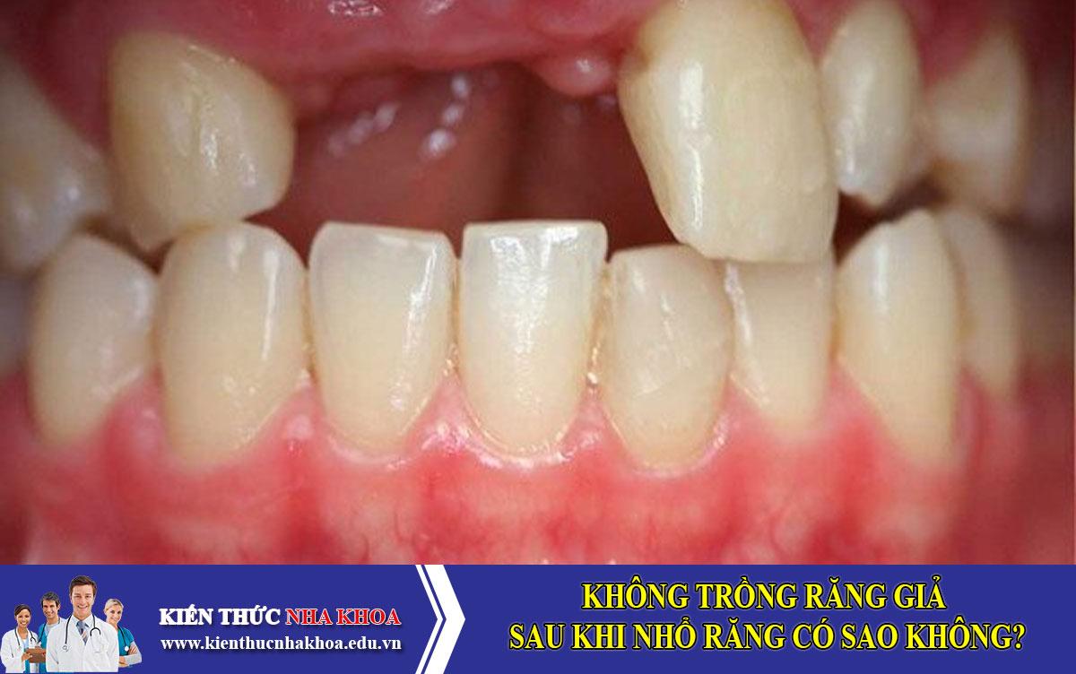 Không trồng răng giả sau khi nhổ răng có sao không?