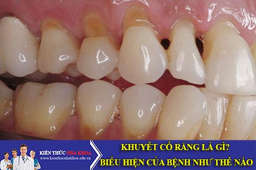 Khuyết Cổ Răng Là Gì? Biểu Hiện Của Bệnh Như Thế Nào