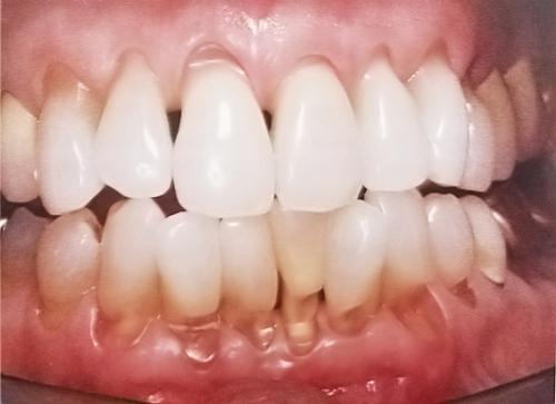 Khuyết Cổ Răng Là Bị Gì?