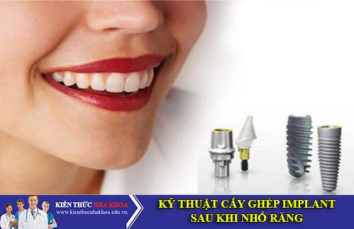 Kỹ Thuật Cấy Ghép Răng Implant Sau Khi Nhổ Răng