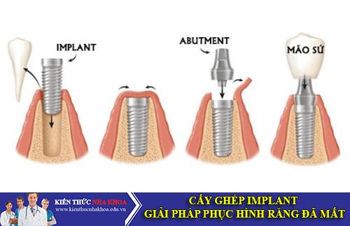 Cấy Ghép Implant Giải Pháp Phục Hình Răng Đã Mất