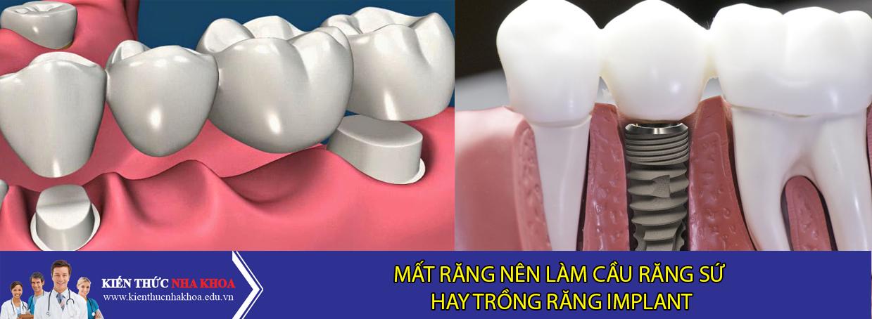 Mất Răng Nên Làm Cầu Răng Sứ Hay Cấy Implant?
