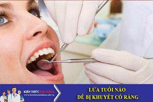Lứa Tuổi Nào Dễ Bị Khuyết Cổ Răng?
