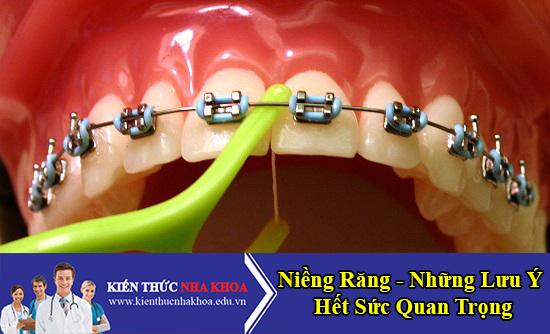Niềng Răng - Những Lưu Ý Hết Sức Quan Trọng Mà Bệnh Nhân Cần Biết