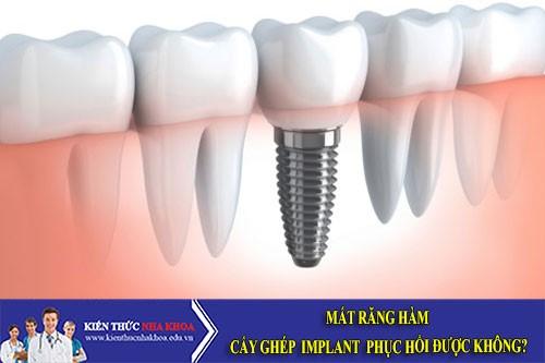 Mất răng hàm cấy ghép Implant phục hồi được không?