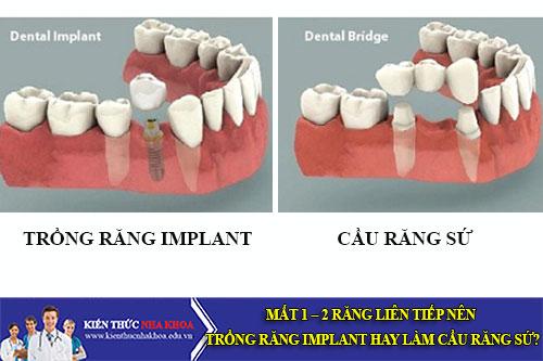 Mất 1 – 2 Răng Liên Tiếp Nên Trồng Răng Implant Hay Làm Cầu Răng Sứ?