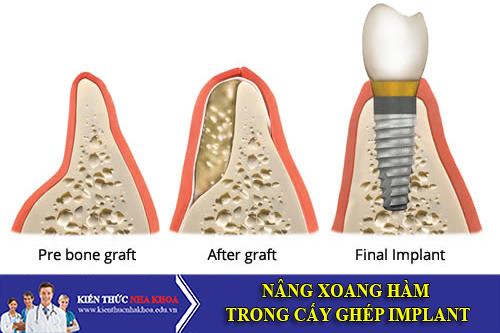 Nâng Xoang Hàm Trong Cấy Ghép Implant