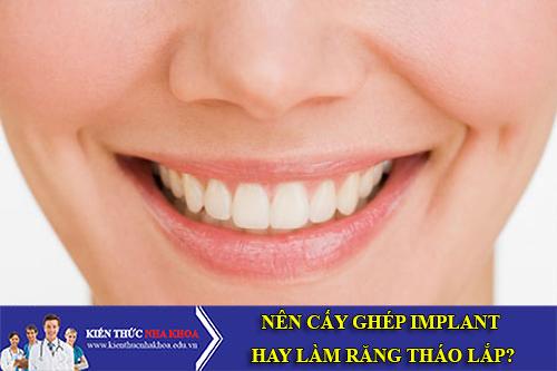 Nên Cấy Ghép Răng Implant Hay Làm Răng Tháo Lắp?