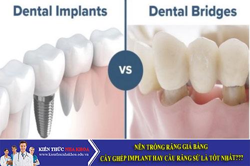 Nên trồng răng giả bằng cấy ghép Implant hay cầu răng sứ là tốt nhất?