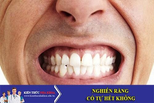 Nghiến Răng Có Tự Hết Không?