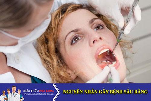 Các Nguyên Nhân Chính Gây Bệnh Sâu Răng