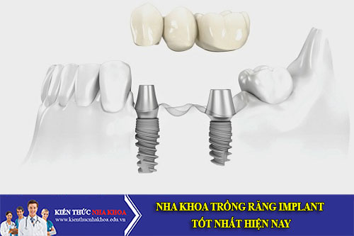 Nha Khoa Trồng Răng Implant Tốt Nhất Hiện Nay