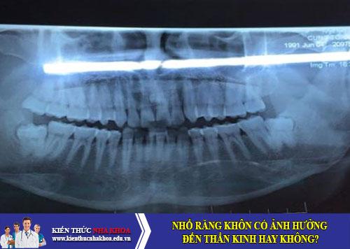 Nhổ răng khôn có ảnh hưởng đến thần kinh hay không?