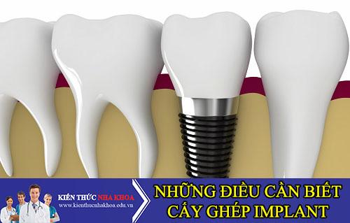 Những Điều Cần Biết Quan Trọng Trước Khi Cấy Ghép Răng Implant