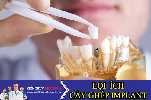 Những Lợi Ích Của Việc Cấy Ghép Răng Implant