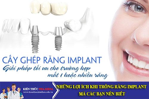Những Lợi Ích Khi Trồng Răng Implant Mà Các Bạn Nên Biết